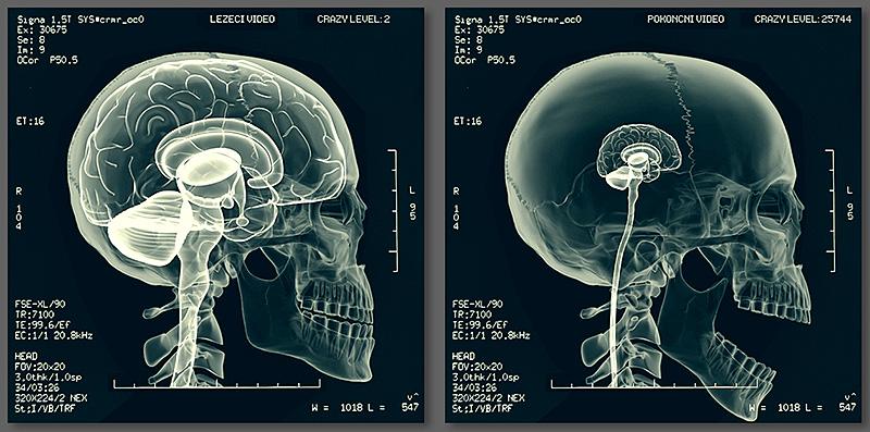 brains crazy